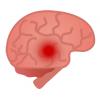 脳卒中の前兆に注意しよう