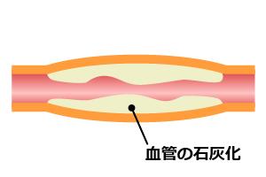 20150407_natto_04
