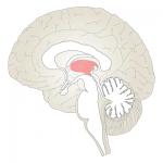 私が起こした脳出血「視床出血」とは