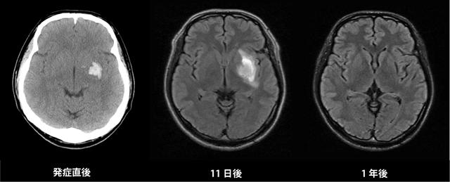 20160129_brain_hikaku_01