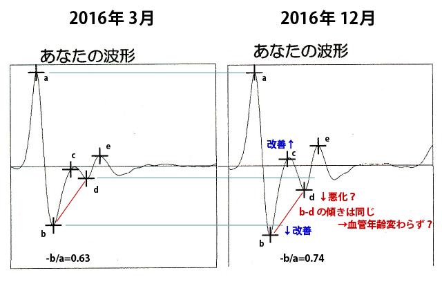 20161201_blood_vessel_age_03